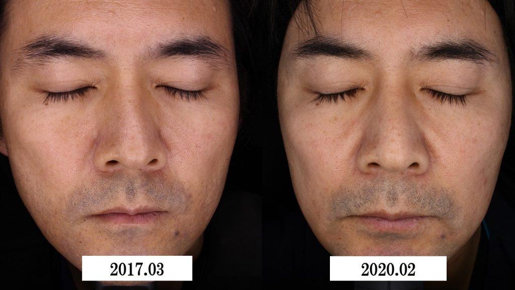 #0311  コエンザイムQ10サプリ ~美肌効果から美白効果、健康維持まで~
